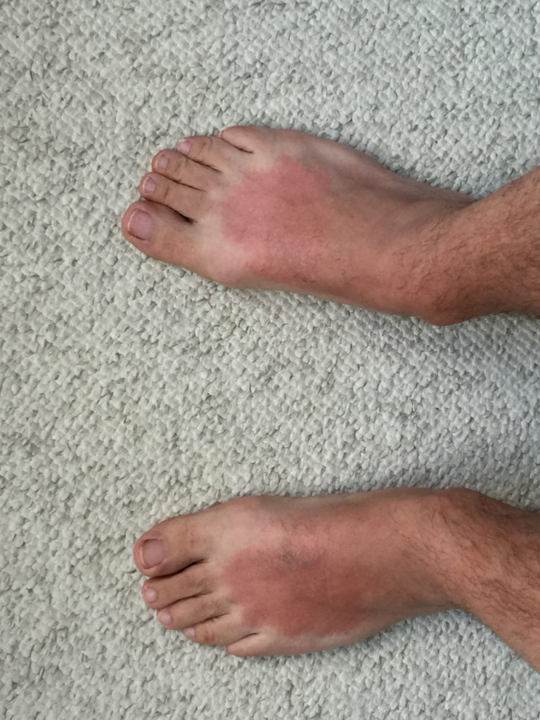 Sunburned feet.